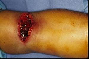 Trauma  Examples Of Exploration Of Hemorrhage Stained