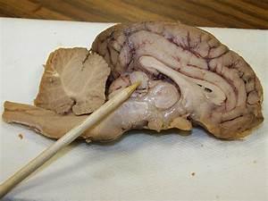 Anatomy - Pineal Gland