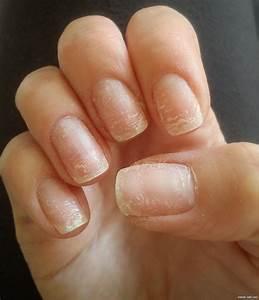 Миконазол мазь от грибка ногтей цена