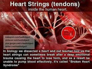 35 best images ... Broken Heart Syndrome