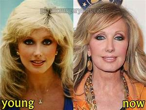 Morgan Fairchild Plastic Surgery Before and After Photo