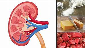 8 Foods That Are Actually Damaging Your Kidneys