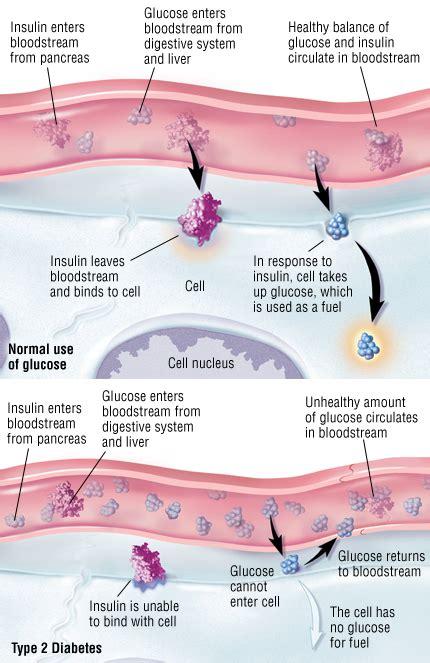 type  diabetes mellitus guide  symptoms