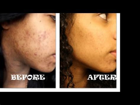 ~UPDATE #1~CLEAR FACE W/ BAKING SODA CHALLENGE   YouTube