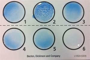 E Herd Test : a mock case of neonatal meningitis andrew t mckenzie ~ Watch28wear.com Haus und Dekorationen