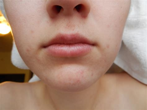 Causes And How To Get Rid Of Mouth Acne Beautyhealthplus