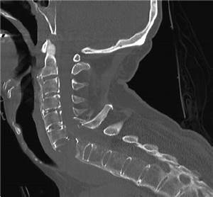 Plain Radiograph  Lateral View  Of The Cervical Spine