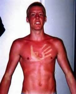 the worst sunburns