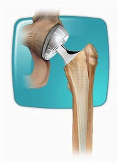 Hip Replacement Lawsuit Attorneys Note Class Action  Aiag. How To Create Ftp Site Godaddy Fax Thru Email. Identity Management Solutions. Server 2003 Iis Version Oracle Sales Training. Medical Lab Technologist Schools. Godaddy Search Engine Optimization. Triple Net Lease Sample Bitnami Cloud Hosting. Online Fundraising Tools For Nonprofits. Cloud Security Startup Insurance Coverage Law
