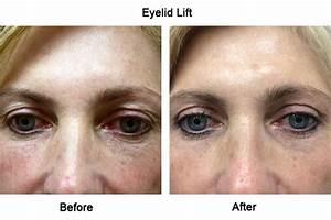 Blepharoplasty - Eye Lift, Eyelid Surgery, Eye Lid Tuck