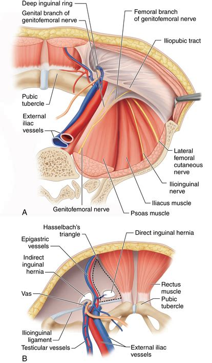Open Inguinal Hernia Repair Surgical Anatomy