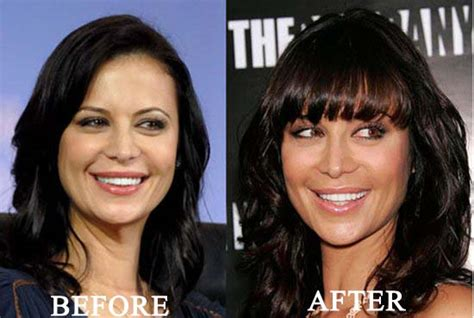 hot tub after breast biopsy catherine bell plastic surgery before and after photos