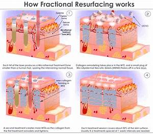 Diagram To Show What Is Fractional Laser 2016
