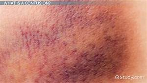 Contusion Wound   www.pixshark.com - Images Galleries With ...