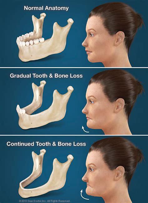 jaw health plano missing teeth jawbone health