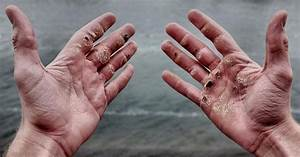 Rowing Blisters 101 - Kayleigh D