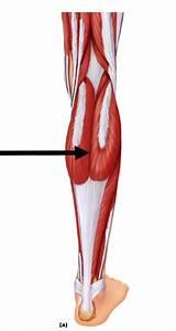 Practical  Leg Model  At Tidewater Community College