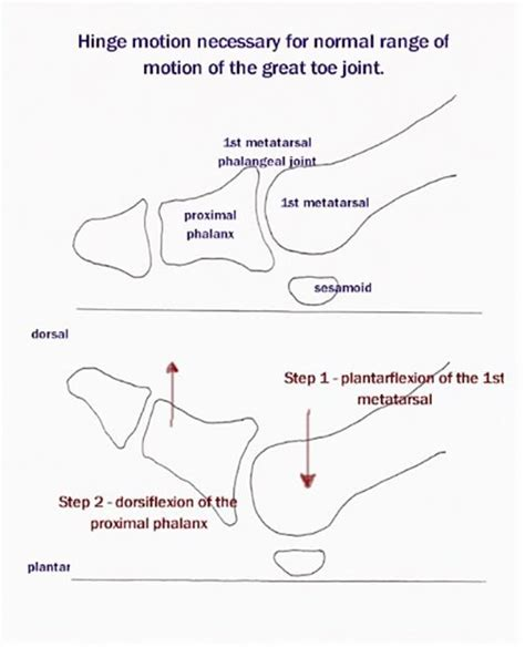 hallux limitus causes and treatment options printer friendly version