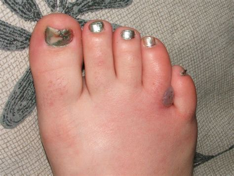 Gallery Of Skin Boil Pictures And Other Infections