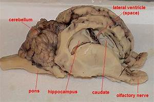 Pig Brain Labeled