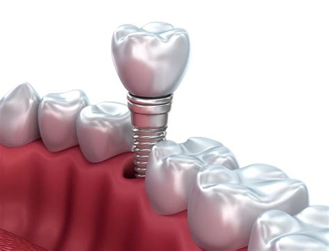 single tooth replacement cost  milwaukee dental
