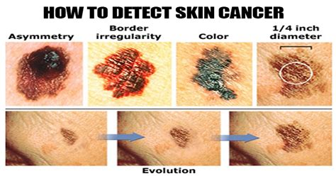 10 Telltale Signs Of Skin Cancer. Constant Urge To Urinate Aortic Valve Location. Hp Com Support & Drivers Allens Plumbing Ct. Indoor Swimming Pool Builders. New Hybrid Cars Coming Soon Dish Denver Co. Medical Certificate Programs Online. Solar Energy For Residential Homes. Cheap Retractable Banners Treating Razor Burn. Meridian Apartments Midland Tx