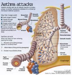 ... questions, mostly because we don't yet know what causes asthma Asthma