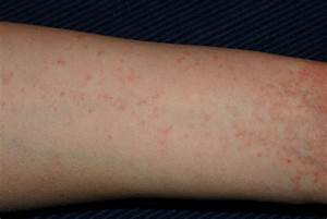 Pictures of Scabies: Signs and Symptoms of Scabies
