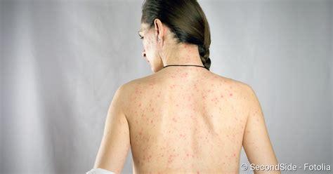 roeteln symptome ansteckung behandlung schutz netdoktor