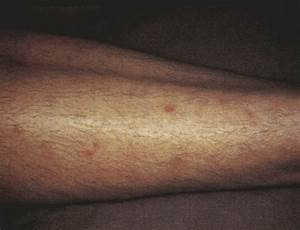 When A Patient Presents With A Lower Extremity Rash ...