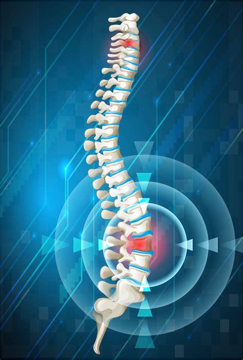 spinal cord injury attorneys  south carolina jebaily