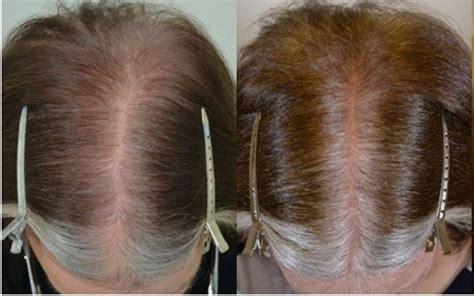 Female Hair Loss Treated with Finasteride - Hair