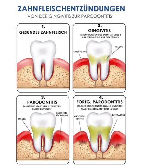 wie bekommt weiße zähne die gesundheit deiner z 227 164 hne h 227 164 ngt paradontose oroszsandor