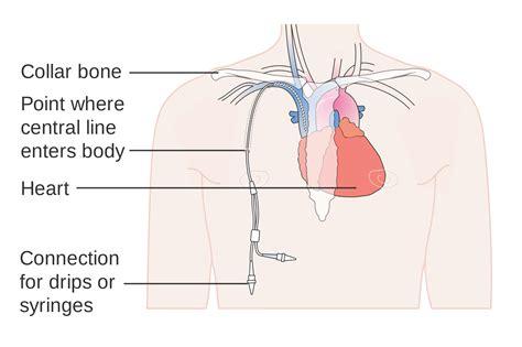 Non Tunneled Central Venous Catheter