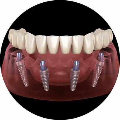 Implants Dental Mouth Arch Indianapolis Denver Laguna