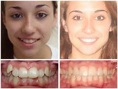 Crowding Braces Orthodontist Mcnutt Clayton Cary Nc 22 Pictures to pin    Invisalign Before And After Severe Crowding