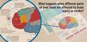 What Happens When Different Parts Of Your Brain Are
