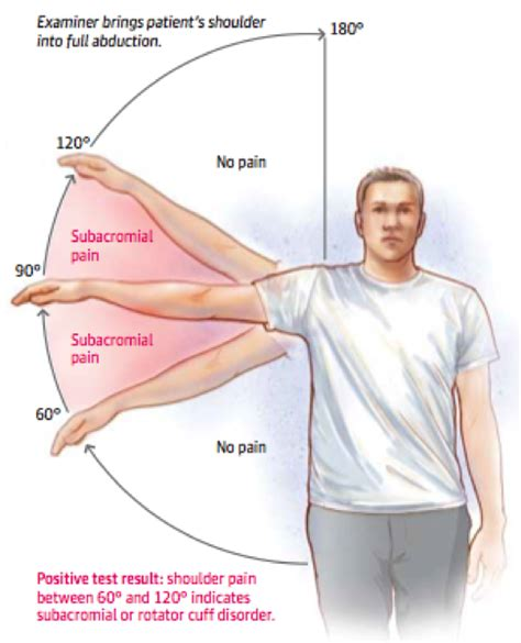 SUBACROMIAL SHOULDER IMPINGEMENT SYNDROME