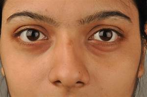 Several Factors Can Cause Dark Circles Under The Eyes ...