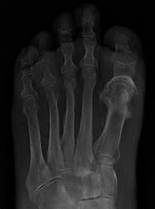 Osteomyelitis  Bone Infection
