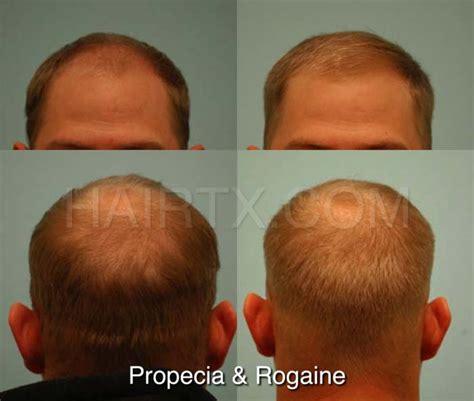 Propecia (Finasteride) Dallas   Hair Growth Medicine Plano, Tx