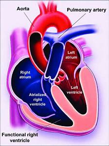 Ebstein U0026 39 S Anomaly  A Portion Of The Right Ventricle Is