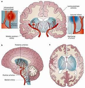 Pica Brainstem Stroke Diagram