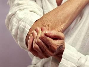 Артроз в локтевом суставе лечение