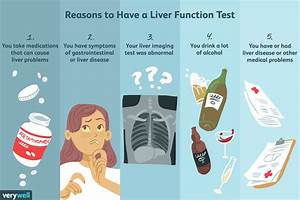 Liver Function Tests  Uses  Side Effects  Procedure  Results