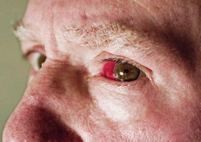 eyes  smoking cigarettes livestrongcom