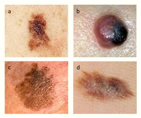 Melanoma Images Nodular Melanoma Treatment In Skin Care Network