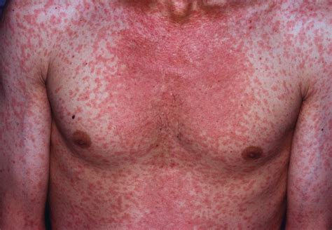 Measles Images Measles Causes Rash Symptoms Signs Measles Treatment