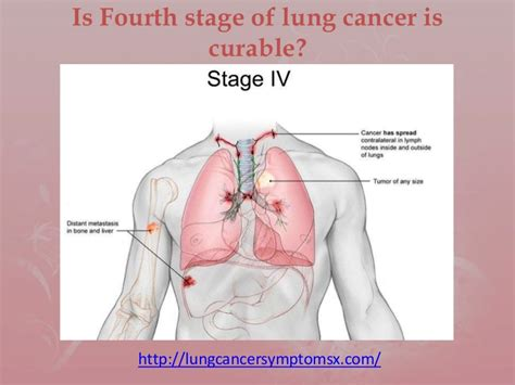 Is Fourth Stage Of Lung Cancer Is Curable. Ubercart Invoice Template. What Is Main Event Template. Sale Commission Agreement Gvvfg. Tips On Cover Letters Template. Sample Bill Of Lading. Online Monthly Budget Planner Template. Schedule Sheets For Employees Template. Labor And Delivery Nurse Cover Letter Template
