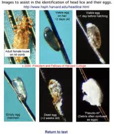 Head Lice Nits Stages
